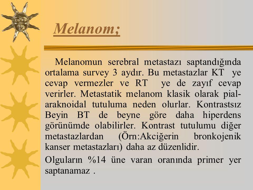 Melanom;