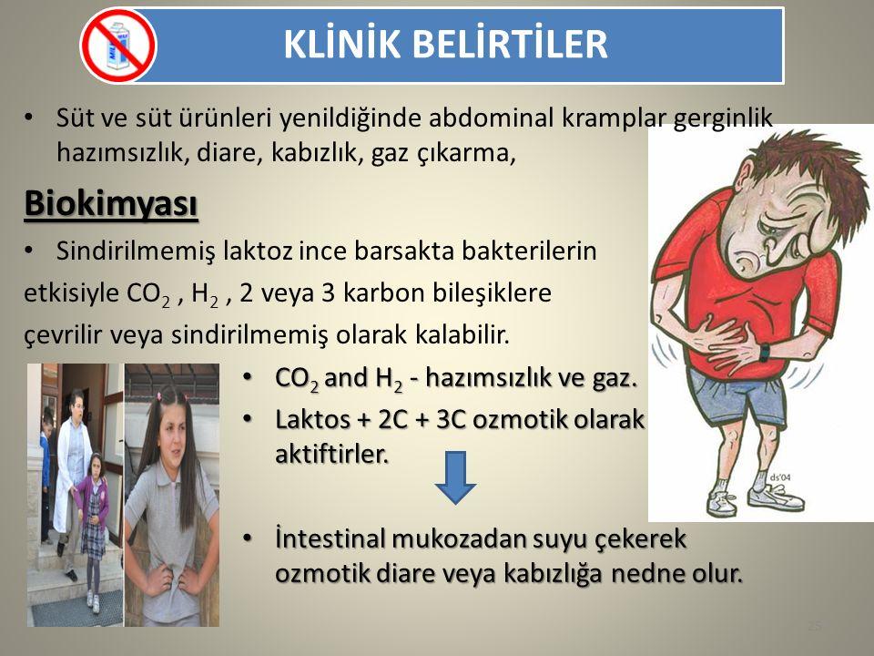 KLİNİK BELİRTİLER Süt ve süt ürünleri yenildiğinde abdominal kramplar gerginlik hazımsızlık, diare, kabızlık, gaz çıkarma,
