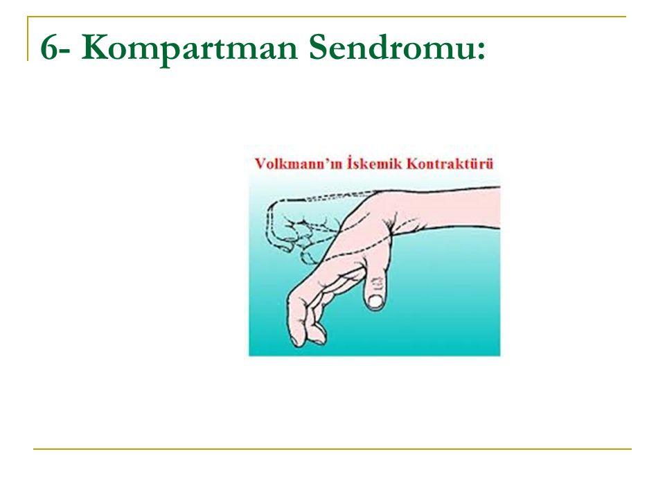 6- Kompartman Sendromu: