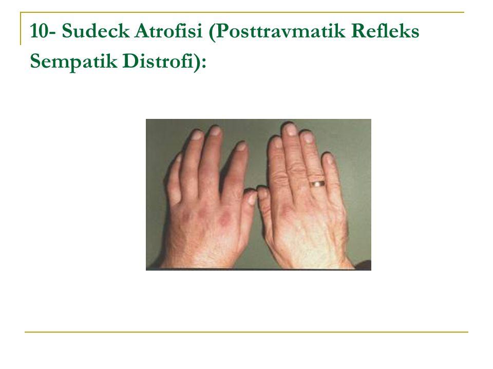 10- Sudeck Atrofisi (Posttravmatik Refleks Sempatik Distrofi):