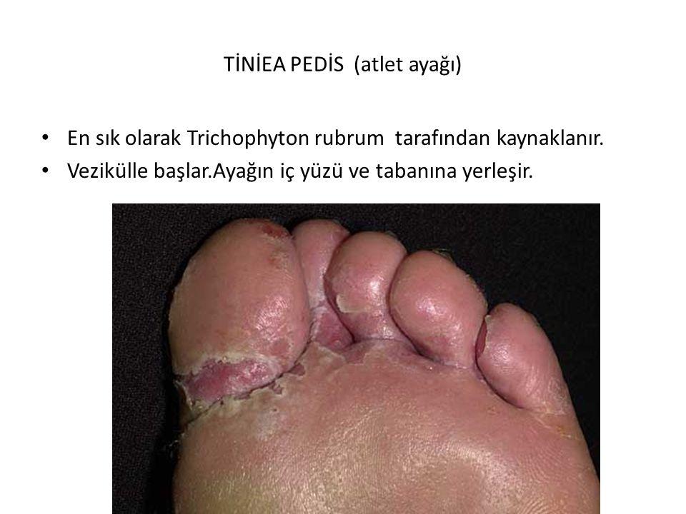 TİNİEA PEDİS (atlet ayağı)