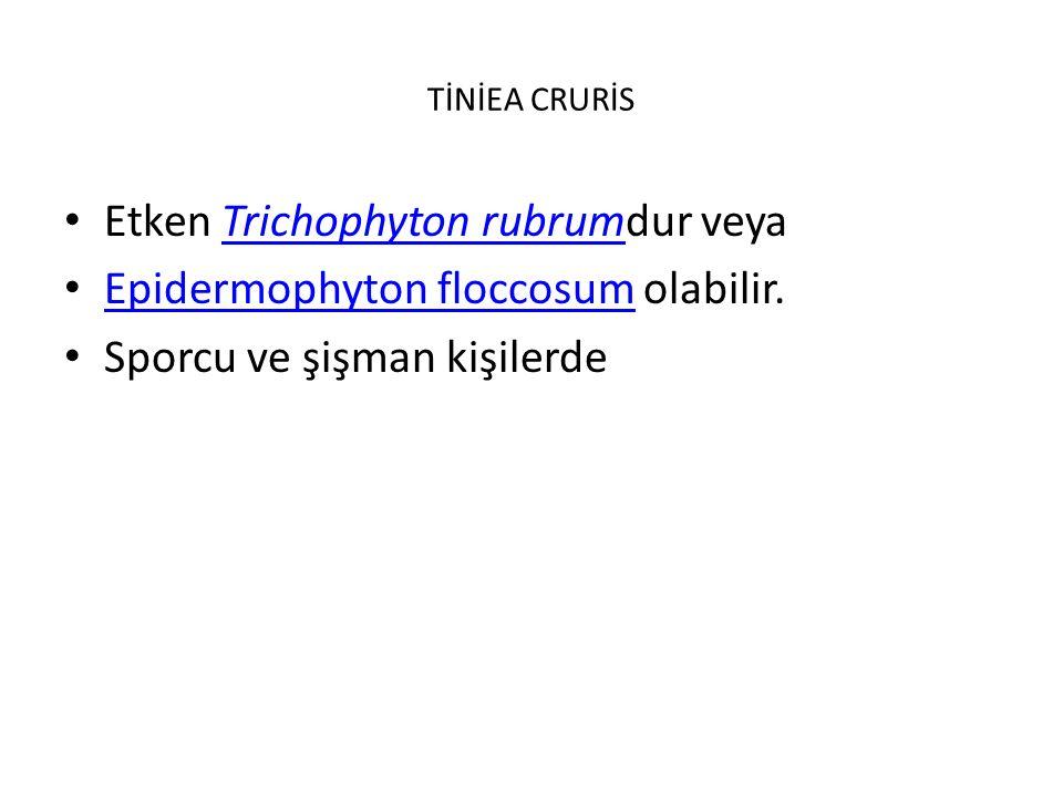 Etken Trichophyton rubrumdur veya Epidermophyton floccosum olabilir.