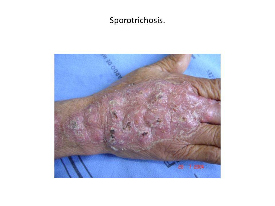 Sporotrichosis.