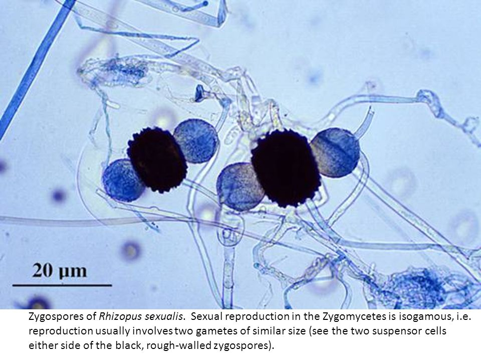 Zygospores of Rhizopus sexualis