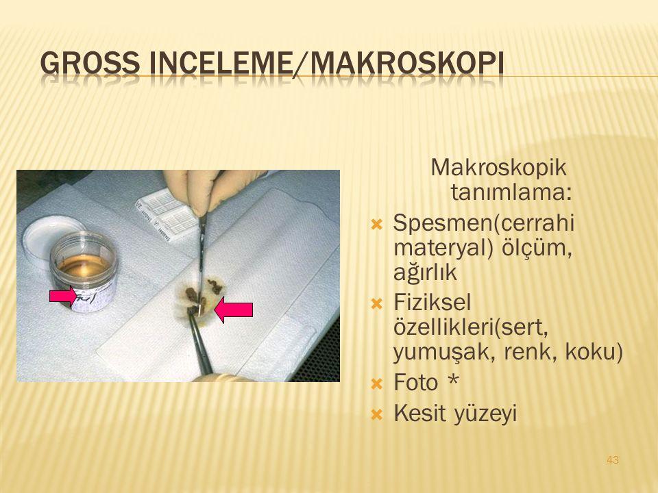 Gross inceleme/Makroskopi