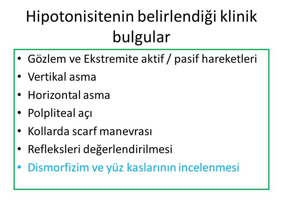 Hipotonisitenin belirlendiği klinik bulgular