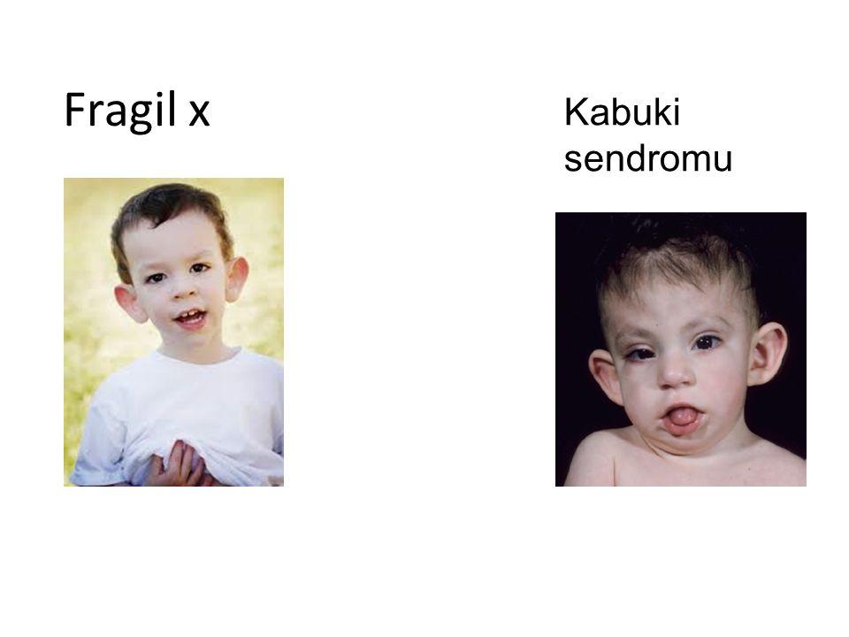 Fragil x Kabuki sendromu
