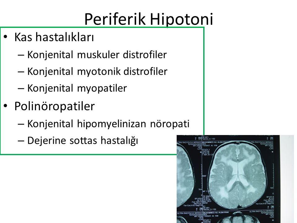 Periferik Hipotoni Kas hastalıkları Polinöropatiler