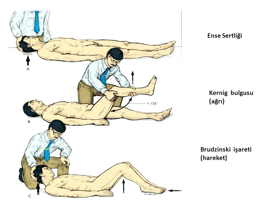 Ense Sertliği Ense Sertliği Kernig bulgusu (ağrı) Brudzinski işareti