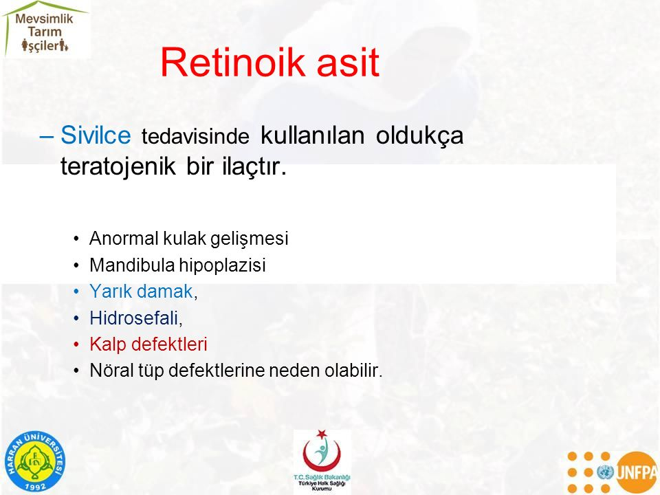 Retinoik asit Sivilce tedavisinde kullanılan oldukça teratojenik bir ilaçtır. Anormal kulak gelişmesi.