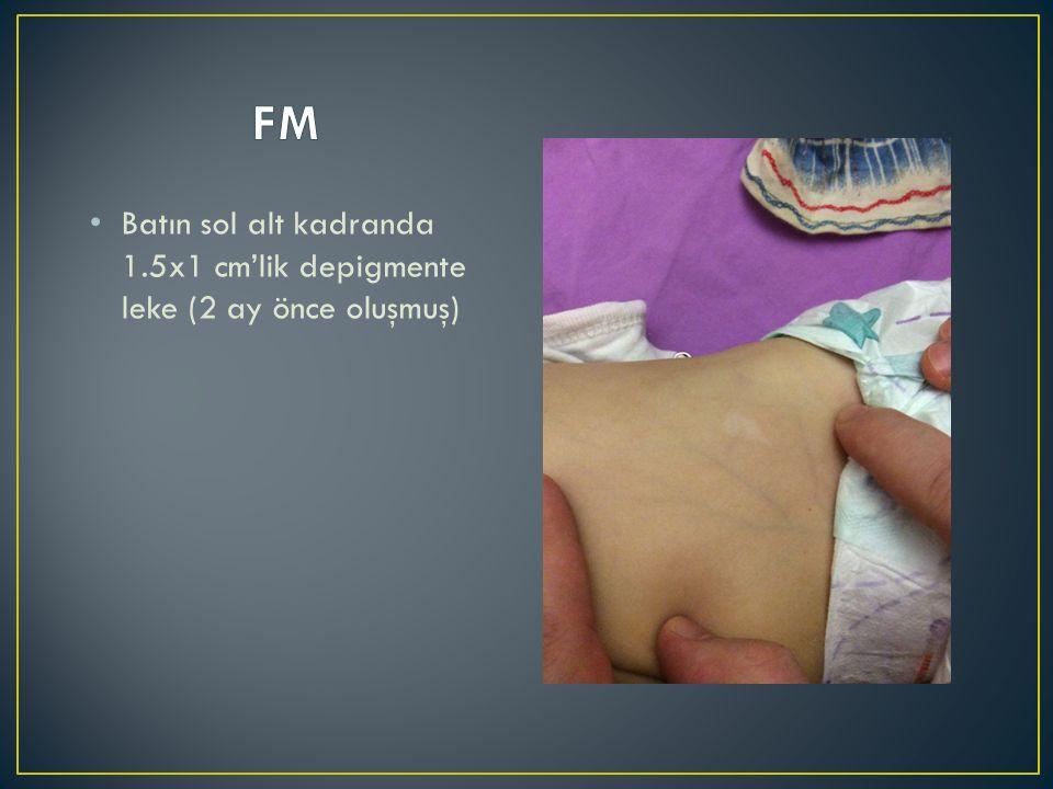 FM Batın sol alt kadranda 1.5x1 cm'lik depigmente leke (2 ay önce oluşmuş)