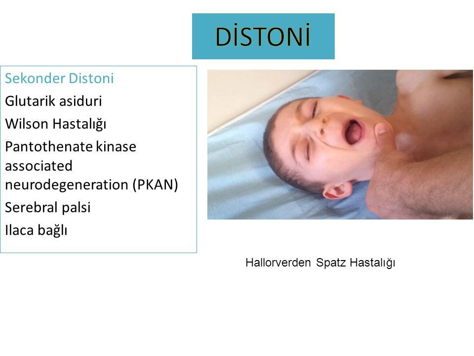 DİSTONİ Sekonder Distoni Glutarik asiduri Wilson Hastalığı Pantothenate kinase associated neurodegeneration (PKAN) Serebral palsi Ilaca bağlı