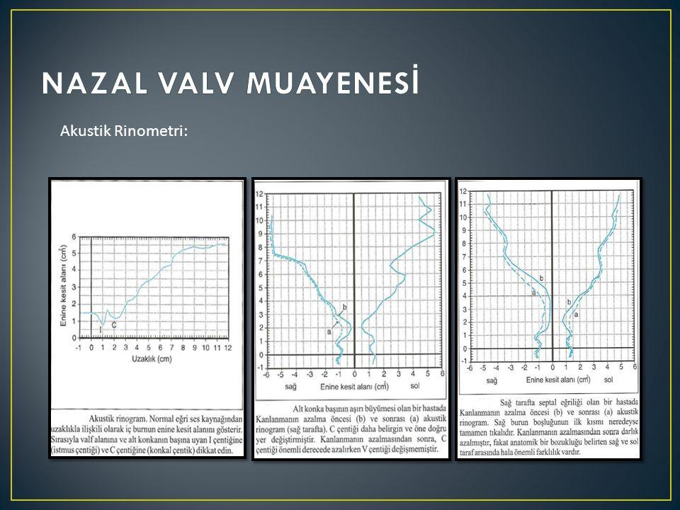 NAZAL VALV MUAYENESİ Akustik Rinometri: