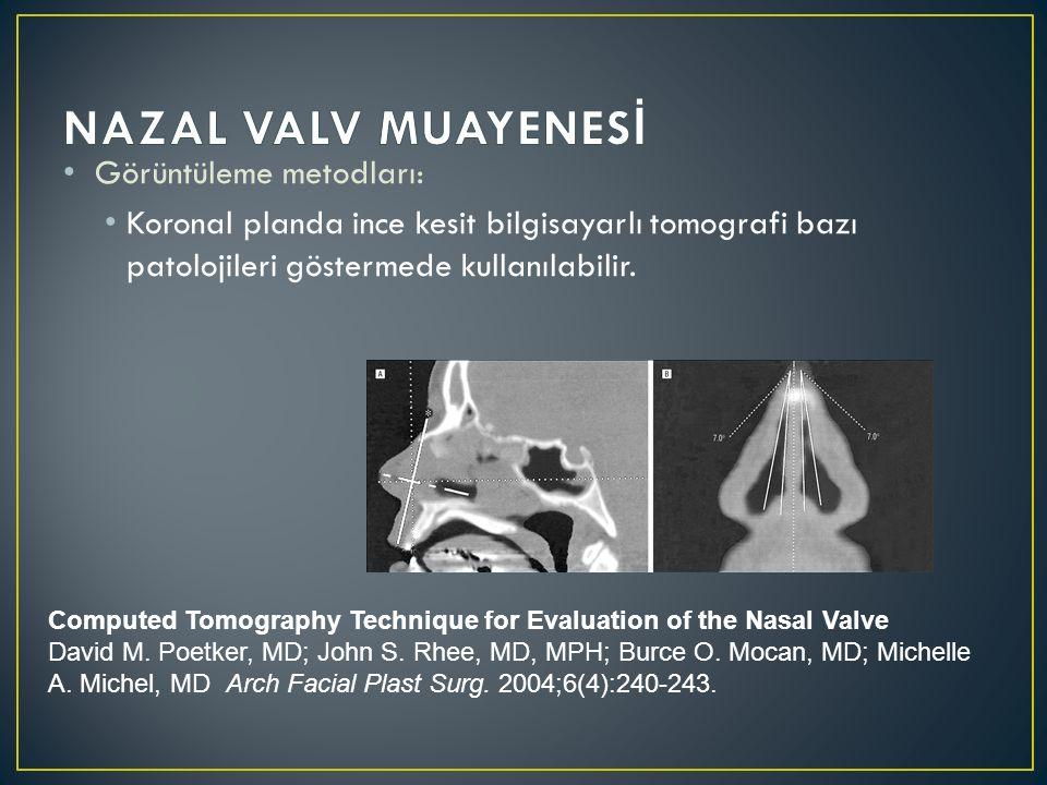 NAZAL VALV MUAYENESİ Görüntüleme metodları: