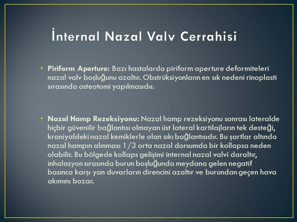 İnternal Nazal Valv Cerrahisi
