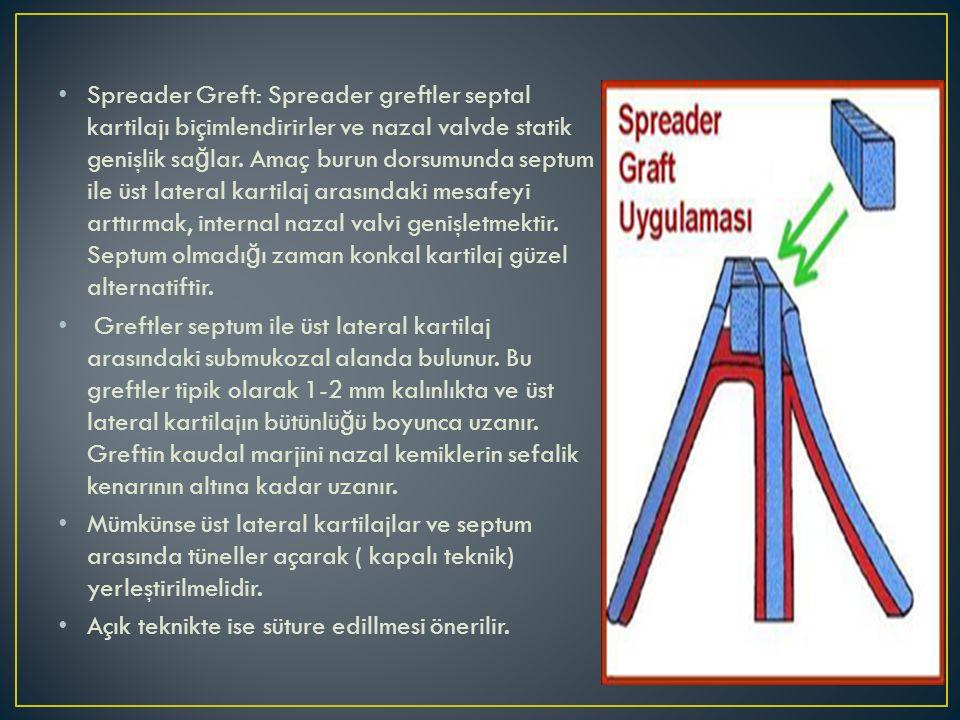 Spreader Greft: Spreader greftler septal kartilajı biçimlendirirler ve nazal valvde statik genişlik sağlar. Amaç burun dorsumunda septum ile üst lateral kartilaj arasındaki mesafeyi arttırmak, internal nazal valvi genişletmektir. Septum olmadığı zaman konkal kartilaj güzel alternatiftir.