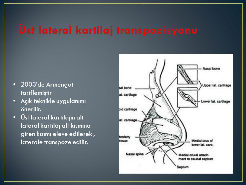 Üst lateral kartilaj transpozisyonu