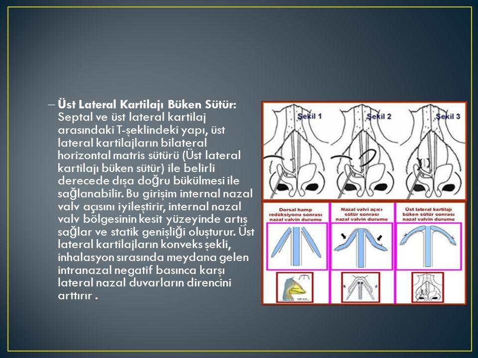 Üst Lateral Kartilajı Büken Sütür: Septal ve üst lateral kartilaj arasındaki T-şeklindeki yapı, üst lateral kartilajların bilateral horizontal matris sütürü (Üst lateral kartilajı büken sütür) ile belirli derecede dışa doğru bükülmesi ile sağlanabilir.
