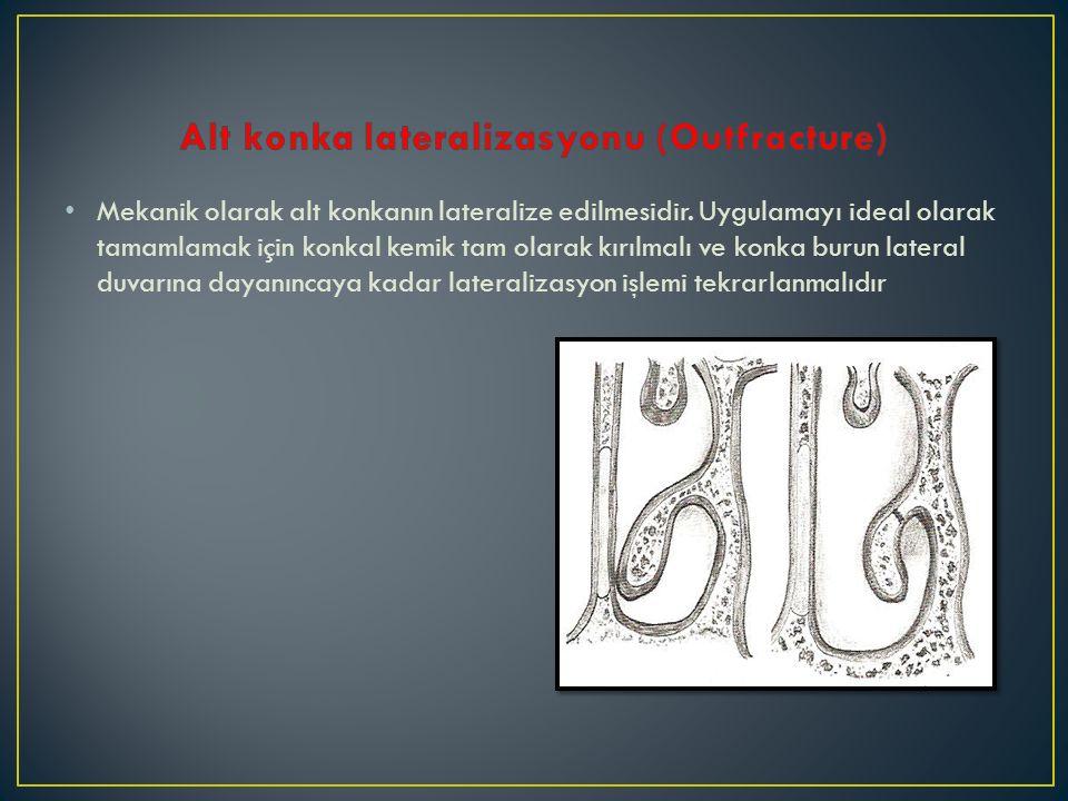 Alt konka lateralizasyonu (Outfracture)