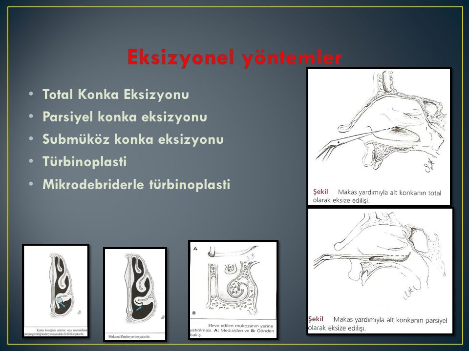 Eksizyonel yöntemler Total Konka Eksizyonu Parsiyel konka eksizyonu