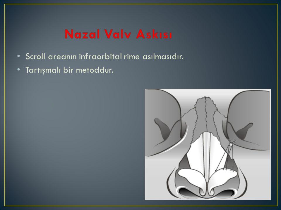 Nazal Valv Askısı Scroll areanın infraorbital rime asılmasıdır.