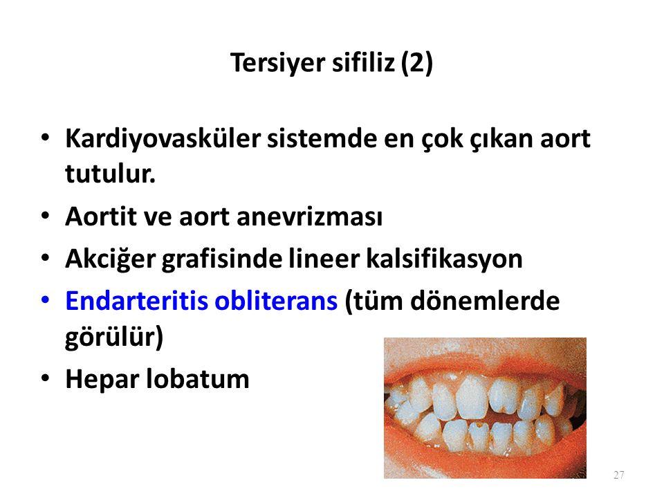 Tersiyer sifiliz (2) Kardiyovasküler sistemde en çok çıkan aort tutulur. Aortit ve aort anevrizması.