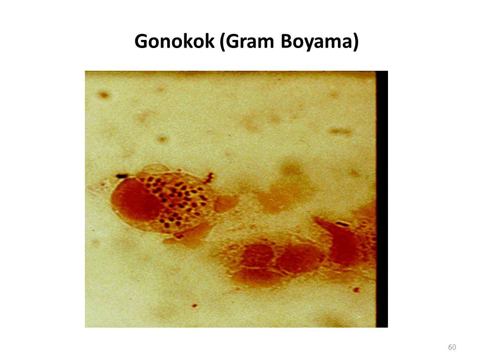 Gonokok (Gram Boyama)