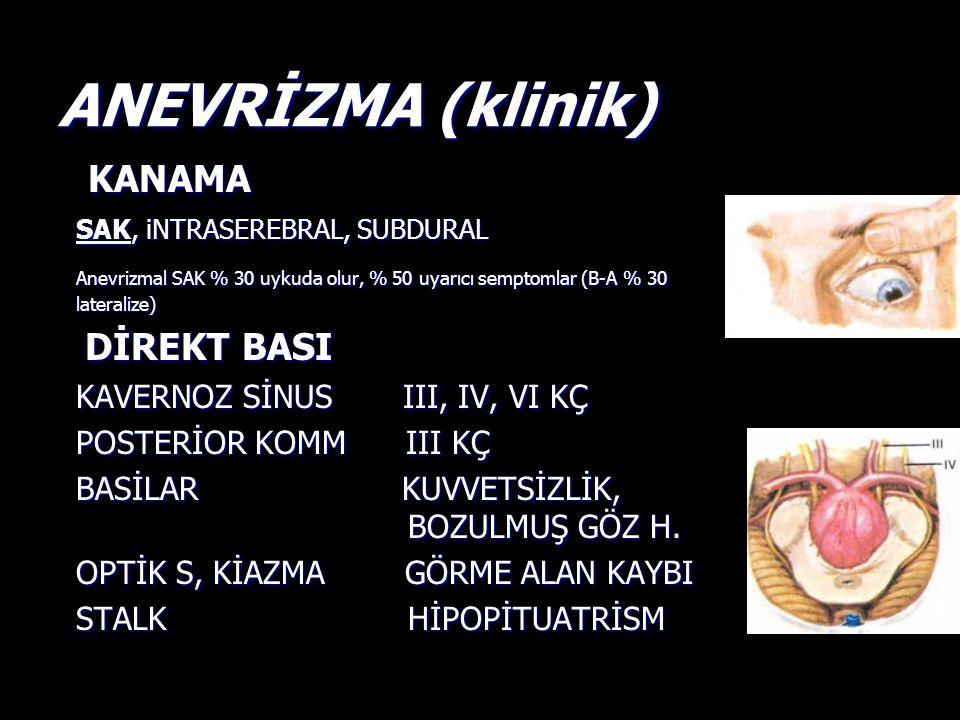 ANEVRİZMA (klinik) KANAMA SAK, iNTRASEREBRAL, SUBDURAL