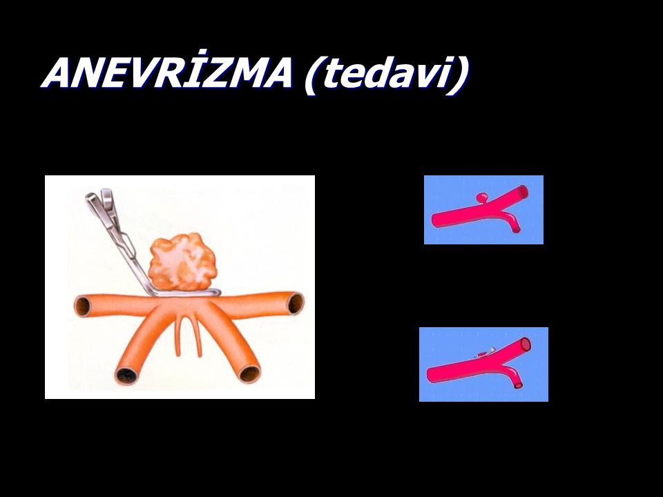 ANEVRİZMA (tedavi)