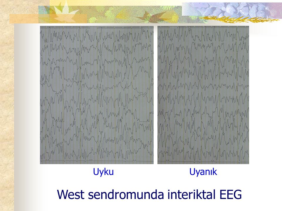 West sendromunda interiktal EEG
