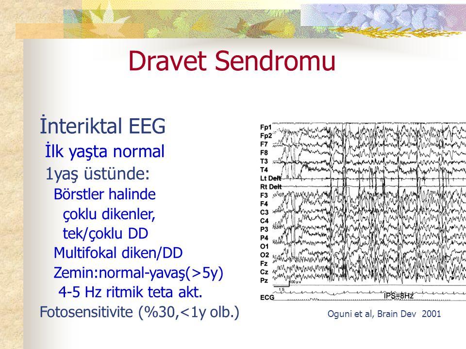 Dravet Sendromu İnteriktal EEG İlk yaşta normal 1yaş üstünde: