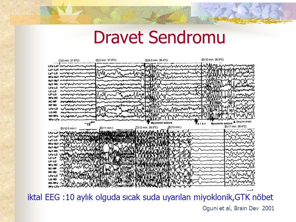 Dravet Sendromu iktal EEG :10 aylık olguda sıcak suda uyarılan miyoklonik,GTK nöbet.