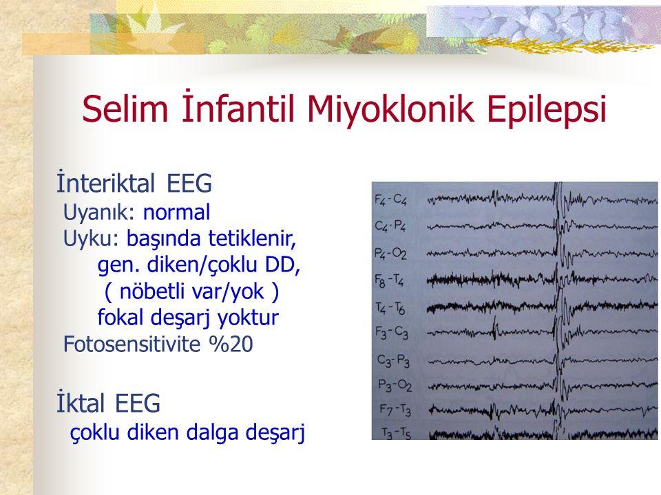 Selim İnfantil Miyoklonik Epilepsi