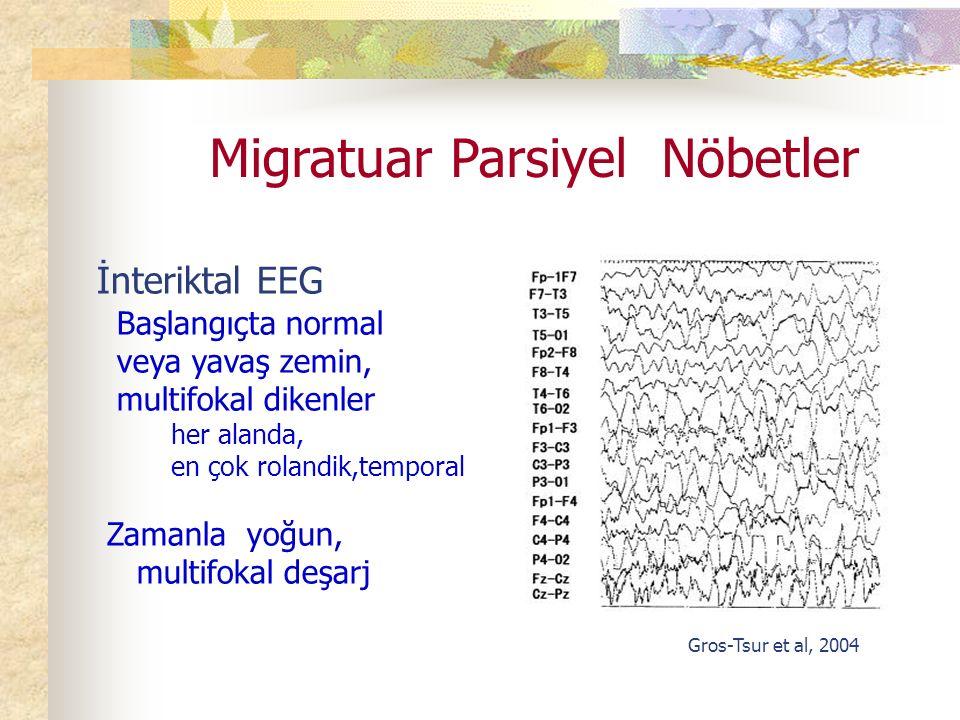 Migratuar Parsiyel Nöbetler