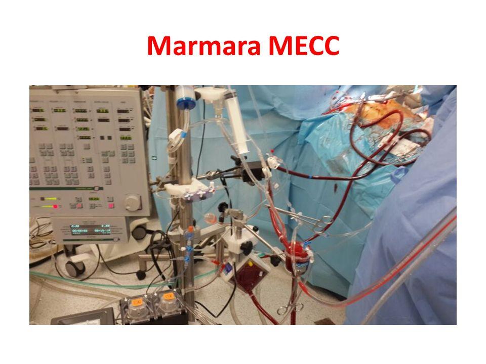 Marmara MECC Marmarada kullandığımız MECC sistemi. Sentrifugal pompa.
