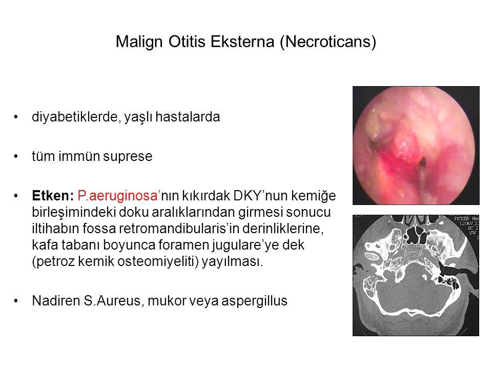 Malign Otitis Eksterna (Necroticans)