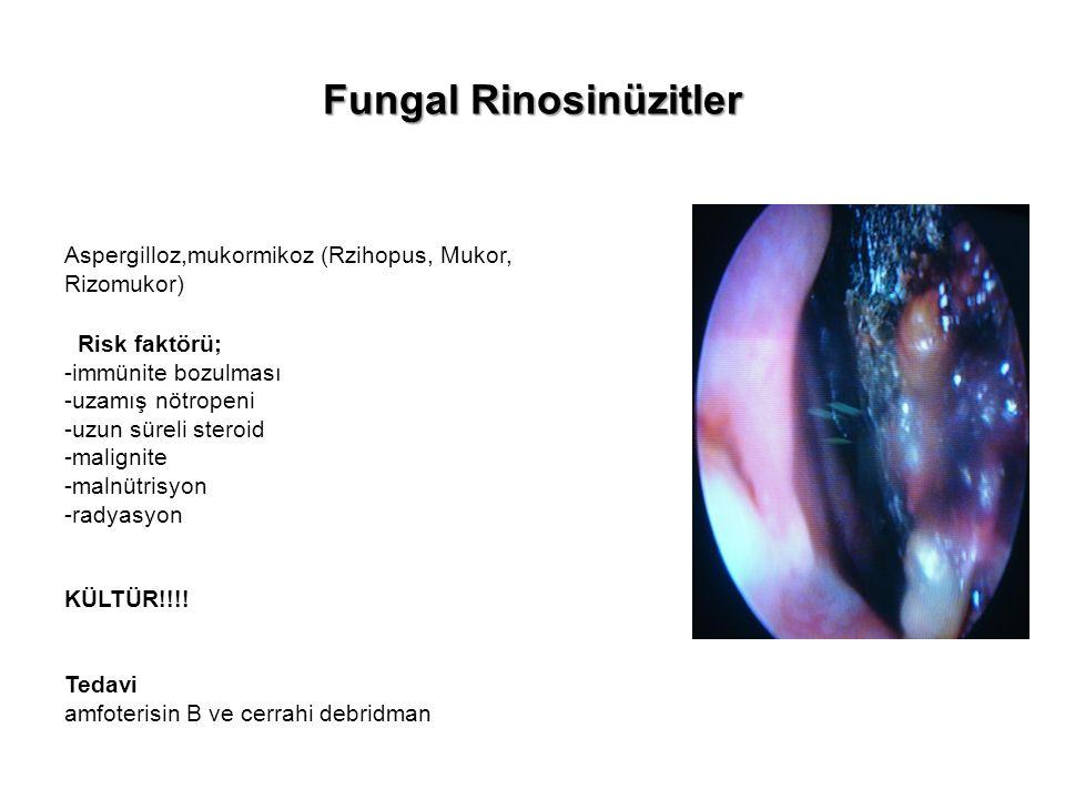 Fungal Rinosinüzitler