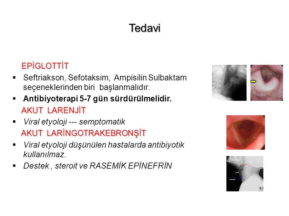 Tedavi EPİGLOTTİT. Seftriakson, Sefotaksim, Ampisilin Sulbaktam seçeneklerinden biri başlanmalıdır.