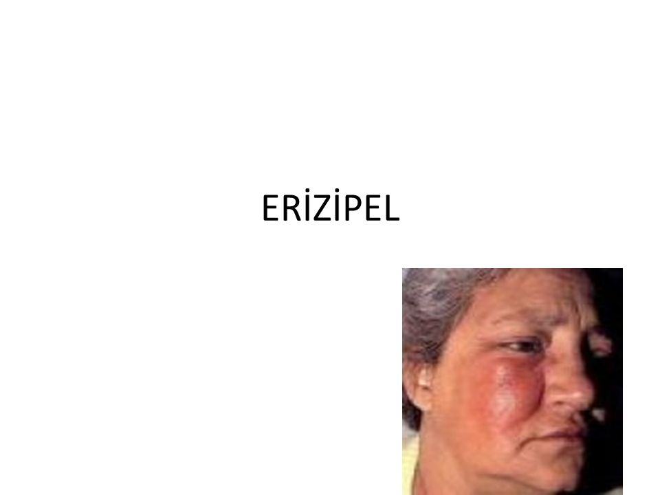 ERİZİPEL