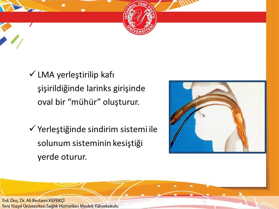 LMA yerleştirilip kafı şişirildiğinde larinks girişinde oval bir mühür oluşturur.