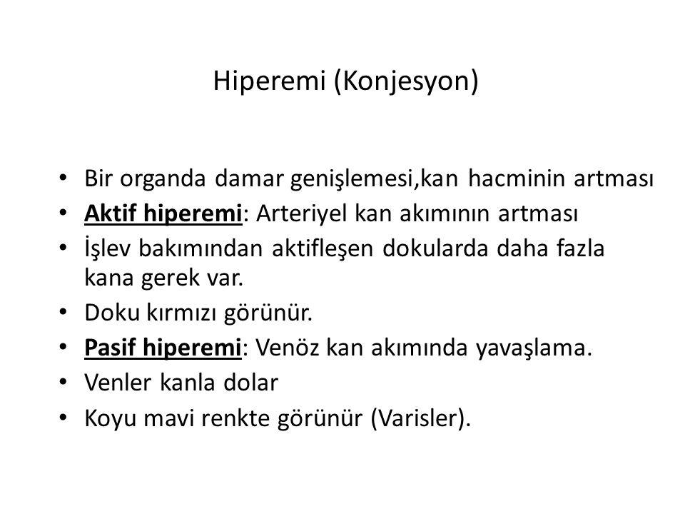 Hiperemi (Konjesyon) Bir organda damar genişlemesi,kan hacminin artması. Aktif hiperemi: Arteriyel kan akımının artması.