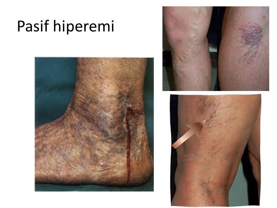 Pasif hiperemi