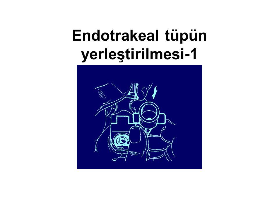 Endotrakeal tüpün yerleştirilmesi-1