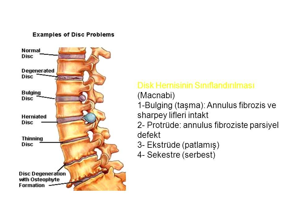 Disk Hernisinin Sınıflandırılması (Macnabi)