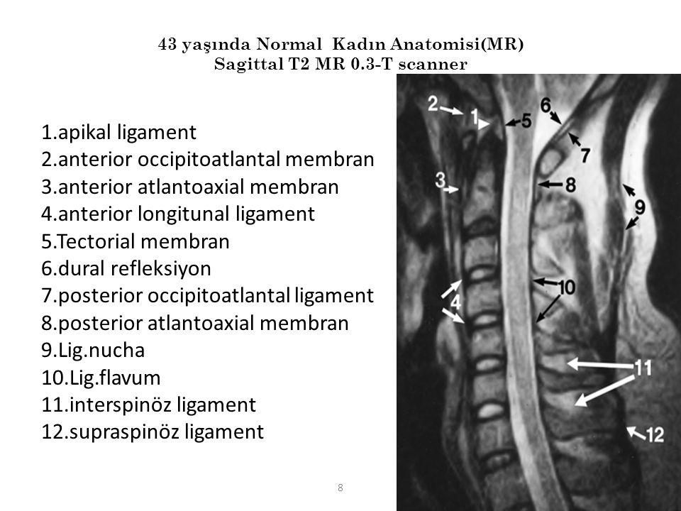 43 yaşında Normal Kadın Anatomisi(MR) Sagittal T2 MR 0.3-T scanner