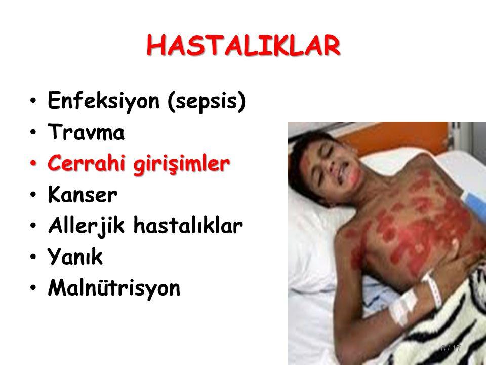 HASTALIKLAR Enfeksiyon (sepsis) Travma Cerrahi girişimler Kanser