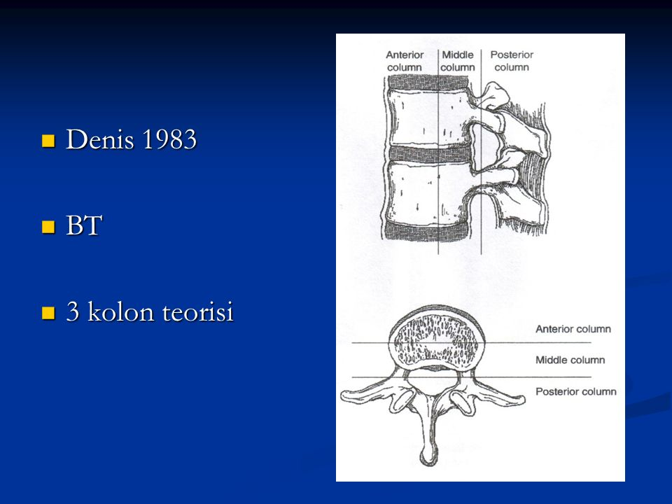 Denis 1983 BT 3 kolon teorisi