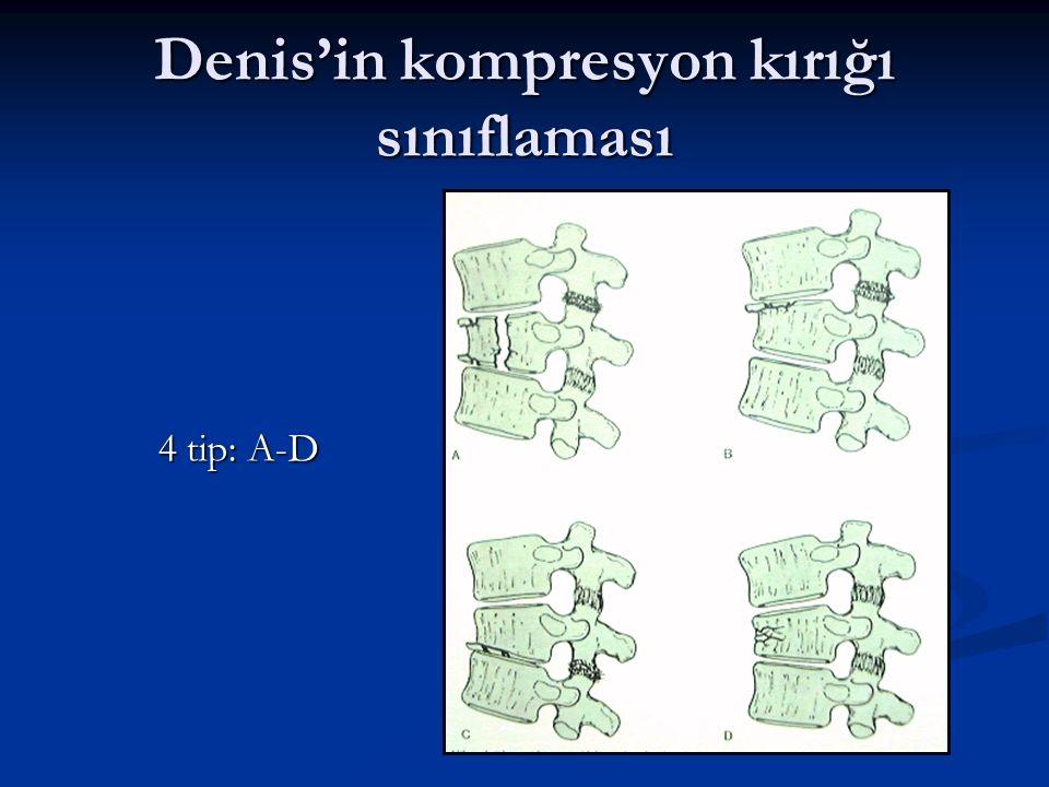 Denis'in kompresyon kırığı sınıflaması