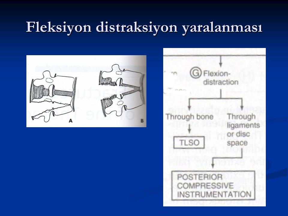 Fleksiyon distraksiyon yaralanması