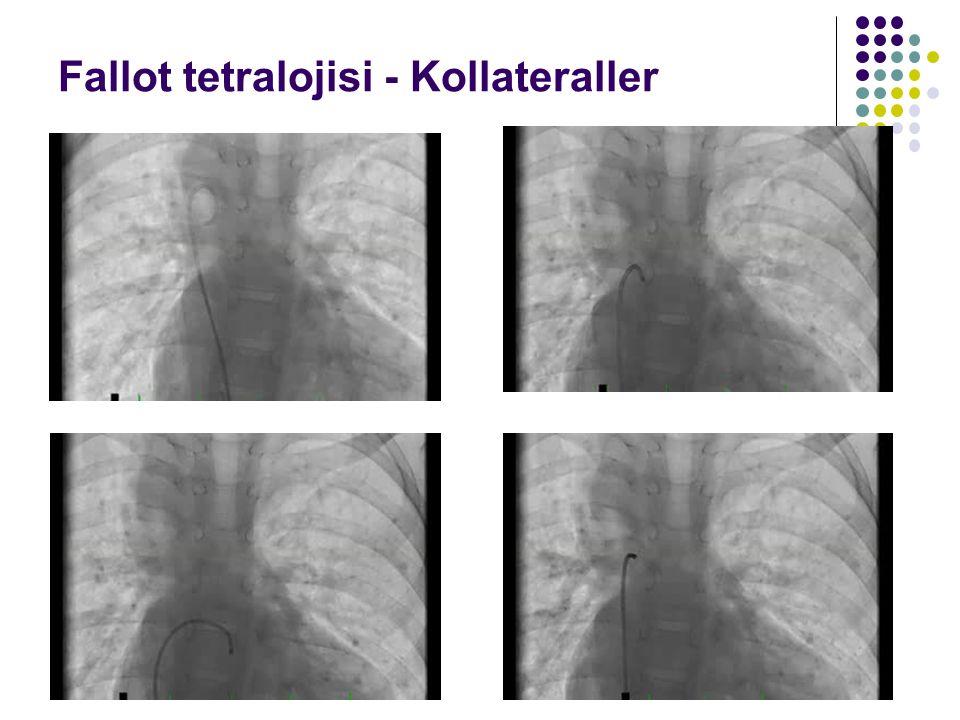 Fallot tetralojisi - Kollateraller
